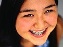 Picture of a smiling female student with braises on her teeth